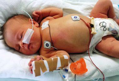 Zwillingsratgeber fruehgeboren-380x260 Frühgeburt - Gefahr in der Zwillingsschwangerschaft