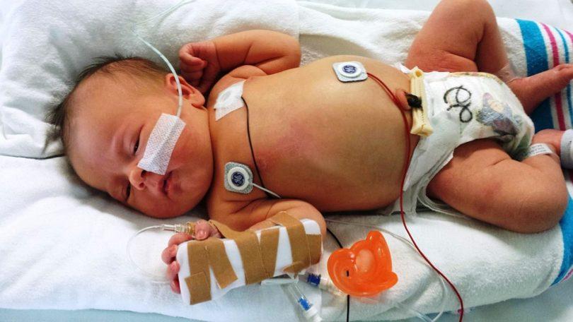 Zwillingsratgeber fruehgeboren-810x456 Frühgeburt - Gefahr in der Zwillingsschwangerschaft